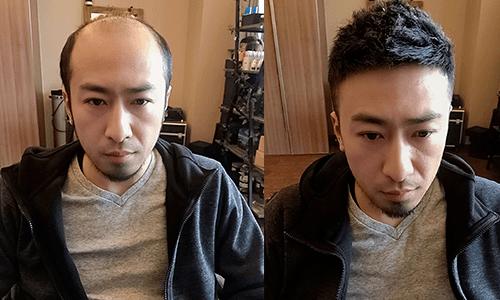 芜湖假发片连锁哪一个最可靠?